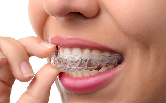 woman inserting clear aligners on her teeth