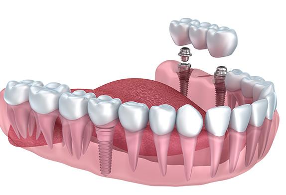illustration of a dental bridge