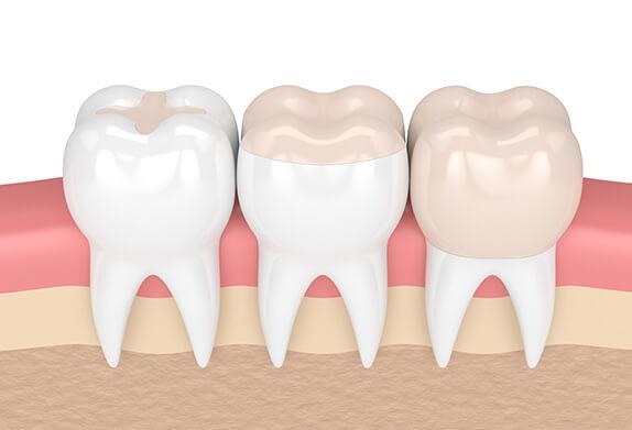 illustration of a dental filling