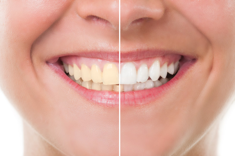 Professional Teeth Whitening Vs At Home Kits Smiles Dental Wa