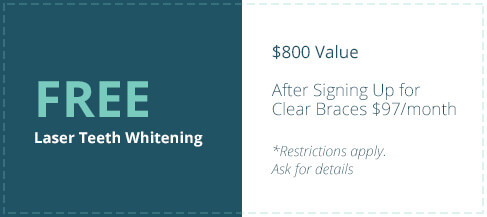 FREE Laser Teeth Whitening - $800 value, after signing up for clear braces $97/month (*Restrictions apply. Ask for details.)