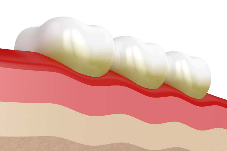 Artistic rendering of the gum line and three teeth with yellowish tartar and calcium deposits