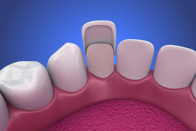Artistic rendering of a porcelain veneer being placed on a misshapen tooth