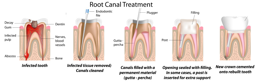 Visual showing the steps to root canal therapy