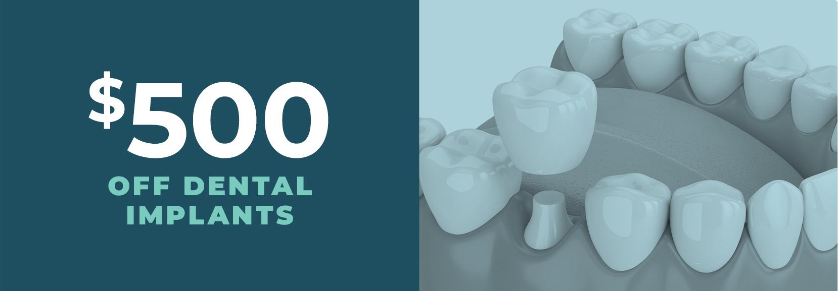 $500 off dental implants