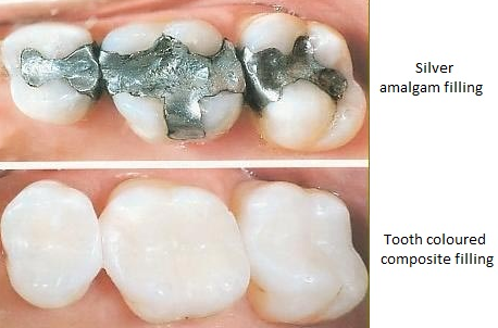 A photo of mercury filled amalgam fillings on the top and tooth colored composite fillings on the bottom