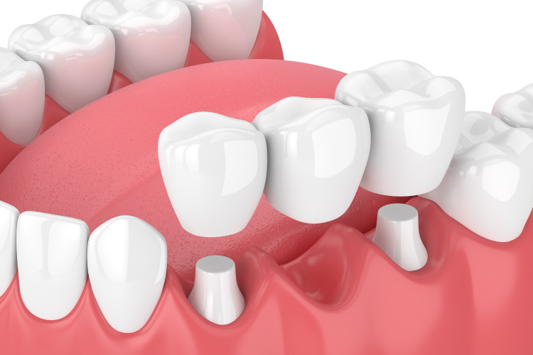 Model rendering of a dental bridge