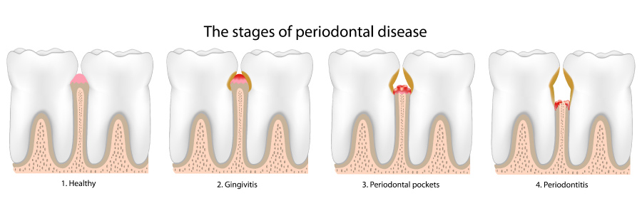 Graphic showing the stages of periodontal or gum disease.